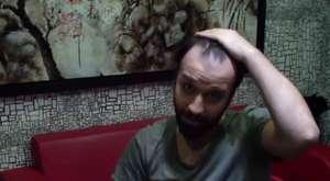 protez saç
